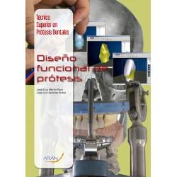 Diseño funcional de prótesis